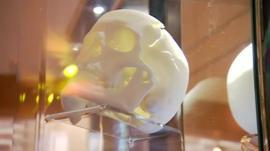 Replica skull of Richard III
