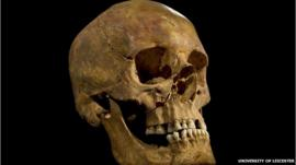 King Richard III's skull