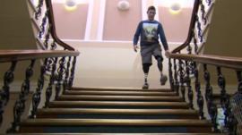 Gregg Stevenson using the stairs with prosthetics