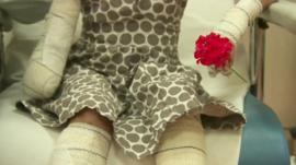 Young girl with arms and legs in casts