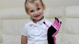 Hayley Fraser, from Inverness has a prosthetic hand made with 3D printing technology.