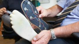 Sensors on the prosthetic foot link to nerves