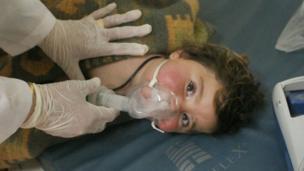A child with an oxygen mask looks at the camera