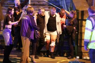 """""""Manchester Arena""""da yaralangan insonlar"""