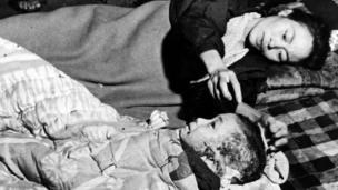 Хиросимадагы жарылуудан аман калып, жашап кеткендер бүтүндөй өмүрүн болуп өткөн окуядан алган психологиялык дартынан арыла албай жашап өтүшкөн.