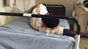 Marasa lafiya na gobarar Ghana
