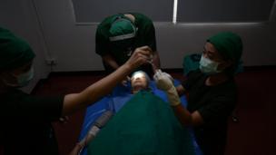 หลังเข้าห้องผ่าตัด ขั้นตอนแรกคือการที่แพทย์จะฉีดยาชาให้กับเธอ โดยเหตุผลที่ไม่ใช้ยาสลบ เพราะต้องการให้คนไข้มีสติและสามารถลุกนั่งแล้วลืมตาได้ทันที หลังผ่าตัด เพื่อประเมินตาว่าเท่ากันหรือไม่