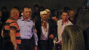 Başından yaralanan Zaev, polis eşliğinde Meclis binasından ayrıldı.