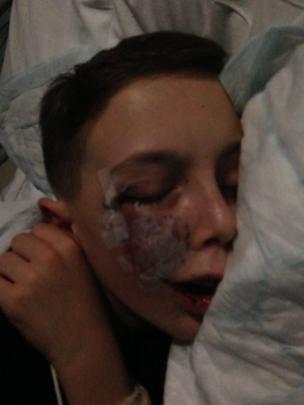 Marcus tras una operación