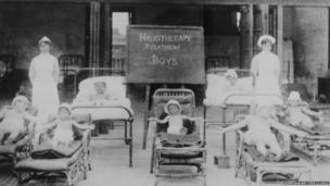 1932 - Heliotherapy treatment of TB - exposure to sun rays was advocated for TB patients
