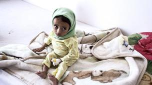 Malnourished child at Sanaa's al-Sabeen Hospital