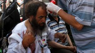Wounded pro-Morsi supporter treated by medics in Cairo on 8 July 2013