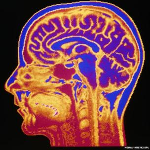 False-colour Magnetic Resonance Image (MRI) of a mid-sagittal section through the head of a normal 42 year-old woman, showing structures of the brain, spine & facial tissues