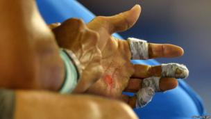 Blisters on the hand of Rafael Nadal