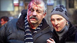 Anti-government protesters are wounded after the clash with the police in Kiev on February 18, 2014.