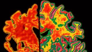 An image of a brain with Alzheimer's and one without
