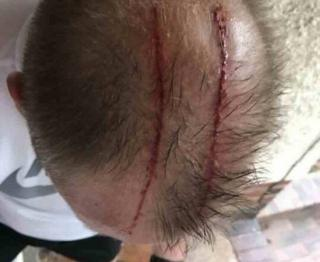 Top of man's head after bird attack