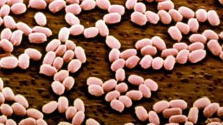 Anthrax bacteria