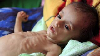 A malnourished Yemeni child receives treatment at a hospital in Sanaa on 22 November 2017