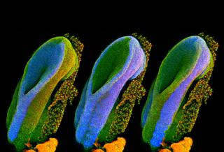 Developing spinal cord