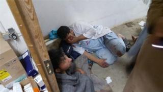 病院空爆でショック状態になった国境なき医師団(MSF)職員(MSF提供写真)