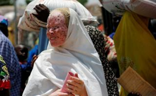 An albino woman waits for food rations at an internally displaced persons camp on the outskirts of Maiduguri, northeast Nigeria June 6, 2017