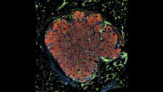 Engineering human liver tissue - Chelsea Fortin, Kelly Stevens and Sangeeta Bhatia, Koch Institute, MIT