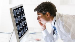 Doctor revisando tomografías cerebrales.