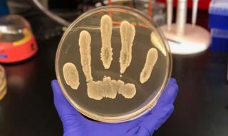 แบคทีเรีย Staphylococcus epidermidis ที่เติบโตในจานเพาะเชื้อ