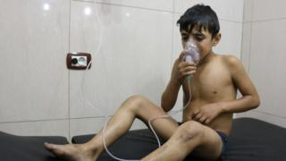 シリア・アレッポで塩素ガス攻撃を受けたとされる少年(6日)