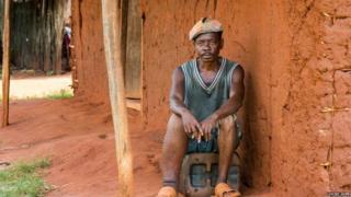Man in Tanzania with a swollen leg