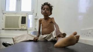 дитина поминає від голоду