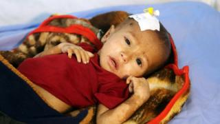 A malnourished Yemeni child receives treatment at a hospital in the Yemeni port city of Hudaydah (16 January 2018)