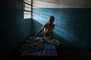 A Venezuelan patient in a mental hospital