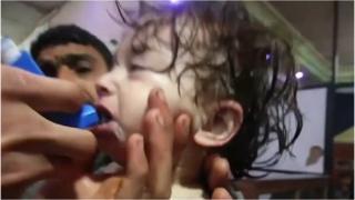 Ребенку оказывают первую медпомощь после предполагаемой химической атаки в городе Дума