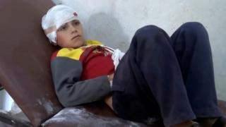 Suriye'de hava saldırısından kurtulan bir çocuk