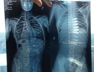 The x-rays show a spine before (left) and after (right) the operation