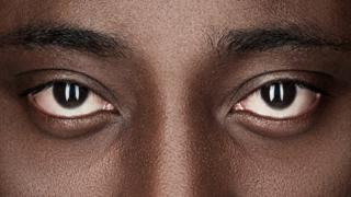 Ojos de un hombre afrodescendiente.