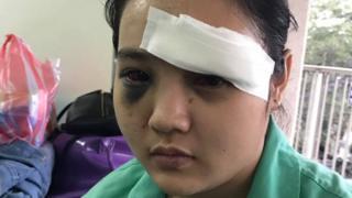 Victim of a violent attack