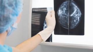 Woman looking at x-ray