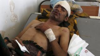 Man injured in air strike on funeral hall in Sanaa lies on a hospital bed on 9 October 2016