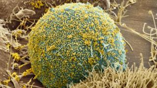 Cell infected with HIV
