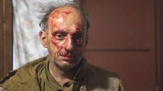 Mikhail Kreindlin after the attack