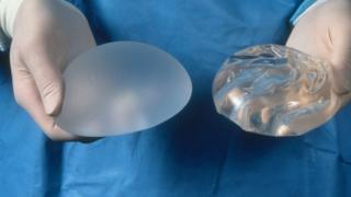 A silicone gel and a smooth saline breast implant