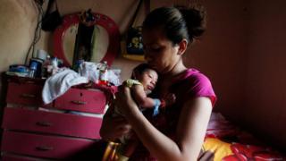 Bebê com Zika