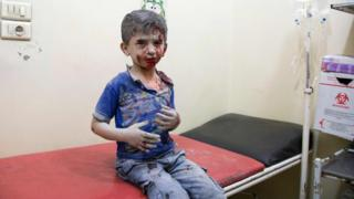 A Syrian boy awaits treatment at a make-shift hospital following air strikes on rebel-held eastern areas of Aleppo on 24 September 2016