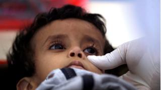 الأطفال في اليمن هم أكثر ضحايا الكوليرا