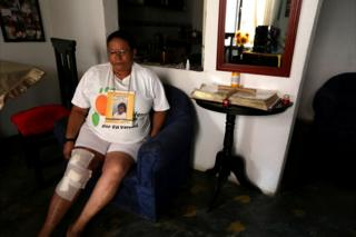 Mujer sentada en un sofá azul con la pierna derecha cubierta de vendajes.