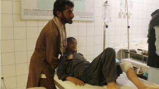 An Afghan resident is treated at a hospital following an airstrike in Kunduz on April 2, 2018.