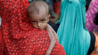 A malnourished Rohingya refugee in Cox's Bazar, Bangladesh. Photo: 24 September 2017